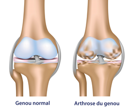 arthrose-du-genou